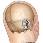Acoustic neuroma surgery: suboccipital