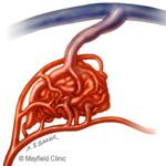 Arteriovenous malformation (AVM)