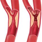 Carotid stenosis