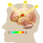 Radiosurgery of the brain: stereotactic