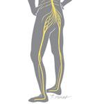 Sciatica, leg pain