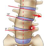 Spinal deformity, scoliosis