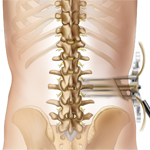 Lateral lumbar interbody fusion (LLIF)